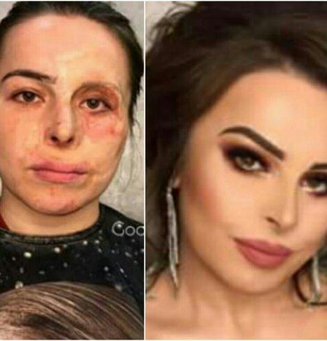 Veja como a maquiagem recuperou a autoestima delas.