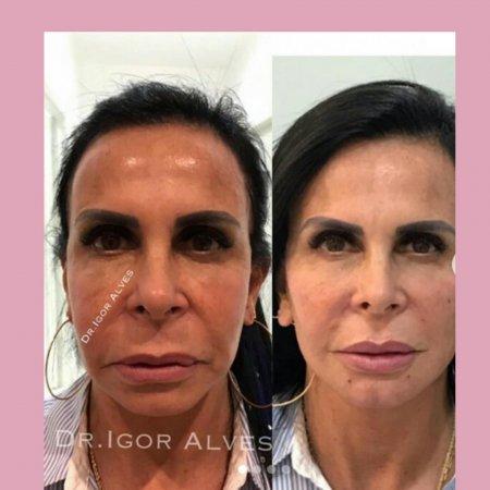 Gretchen mostra no seu Instagram o seu novo visual com nova Harmonização facial.